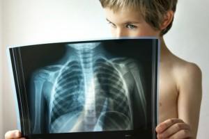 Основные меры профилактики пневмонии у детей